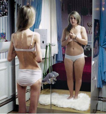 anorexia 400.jpg