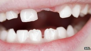 Could stem cells be a source of new teeth?