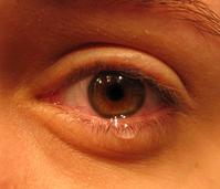 eye w:tears.jpg
